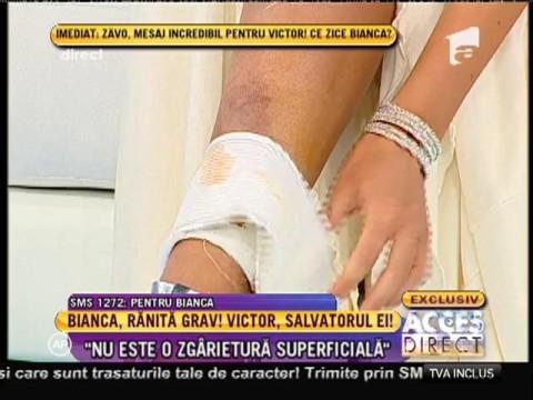 Atenţie! Imagini şocante. Cum arată rana Biancăi Drăguşanu