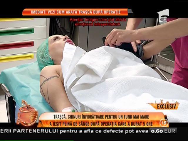 Simona Traşcă, chinuri înfiorătoare pentru un posterior mai mare. Operația a durat 5 ore!