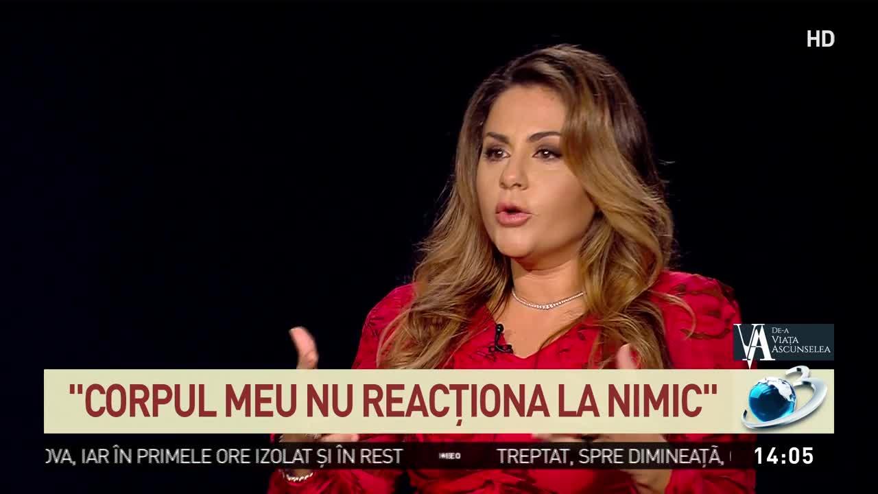 Oana Turcu Brancu: La 23 de ani am scăpat de acneea nodulo-chistică