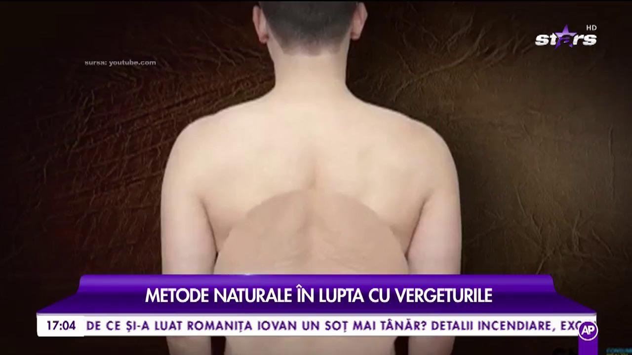 Trucuri pentru o piele netedă și catifelată. Metode naturale în lupta cu vergeturile